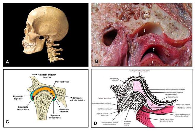 Infiltração de hialuronato de sódio na articulação temporomandibular