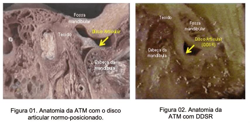 Tese de Doutorado – Avaliação da efetividade do tratamento da articulação temporomandibular (ATM) com deslocamento do disco sem redução (DDSR): revisão sistemática